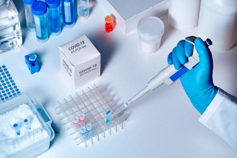 Частна лаборатория в Пловдив вече прави тестове за коронавирус