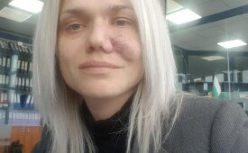 34-годишна жена от Пазарджик се нуждае от спешно лечение! Да помогнем!